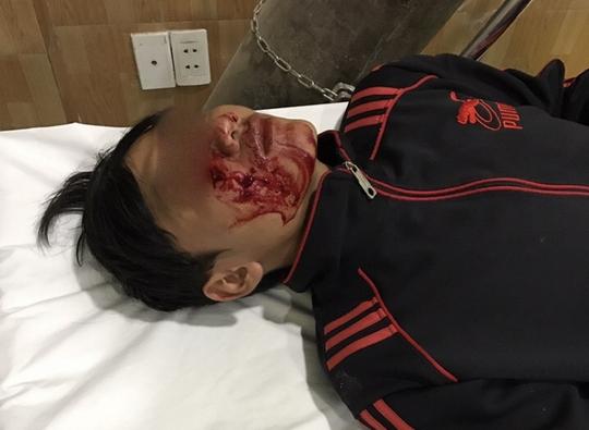 Một trong 4 người thuộc lực lượng chức năng của phường Tân Hiệp bị đá ném trọng thương vùng mặt