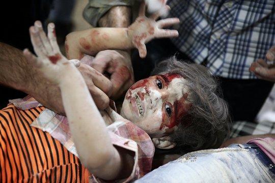 Một bé gái trong bệnh viện dã chiến sau các cuộc không kích tại TP Douma - Syria hôm 12-9 Ảnh: REUTERS