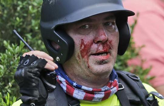 Lao xe, rơi trực thăng trong bạo động, hàng chục người thương vong - Ảnh 5.