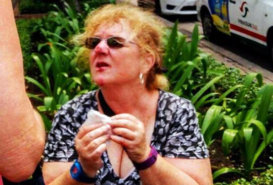 Nữ du khách bị vấp ngã dập mặt do đơn vị thi công tác trách. (Ảnh: Facebook).