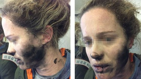 Hành khách nữ gặp nạn vì tai nghe phát nổ. Ảnh: ATSB
