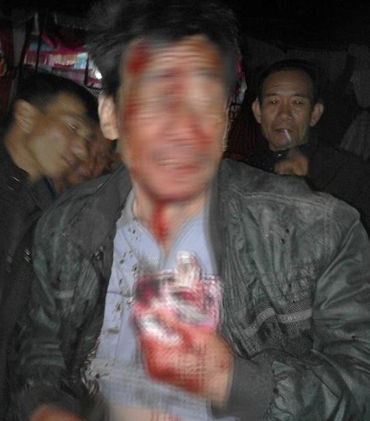 Ông Sang bị đối tượng lạ mặt chém bị thương. Ảnh B.N