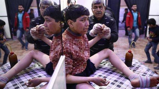 Hàng chục người khác cũng gặp vấn đề về hô hấp cùng những triệu chứng khác như ngất, nôn mửa, sùi bọt mép... hôm 4-4 Ảnh: AL JAZEERA