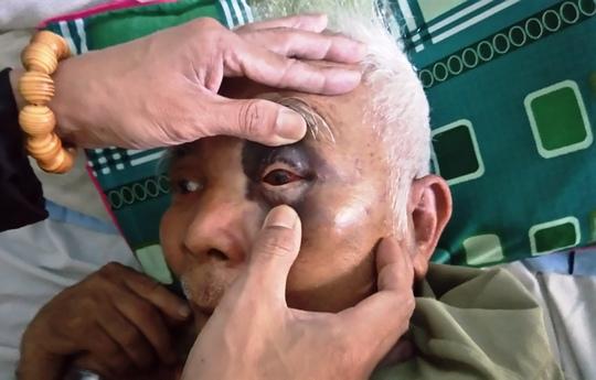 Ông Đằng bị thương nặng ở vùng mắt và lưng hiện đang điều trị tại bệnh viện