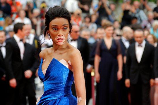 Người mẫu bạch biến tự tin khoe dáng tại Cannes 70 - Ảnh 4.