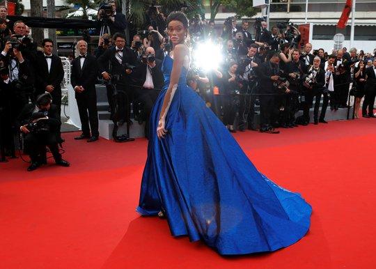 Người mẫu bạch biến tự tin khoe dáng tại Cannes 70 - Ảnh 3.