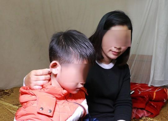Chủ tịch Hà Nội yêu cầu điều tra vụ bé trai nghi bị bố đánh dã man - Ảnh 1.