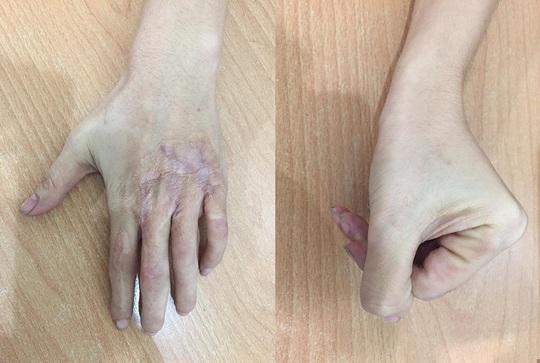 Giữ lại vân tay cho cô gái bị cán nát tay - Ảnh 1.
