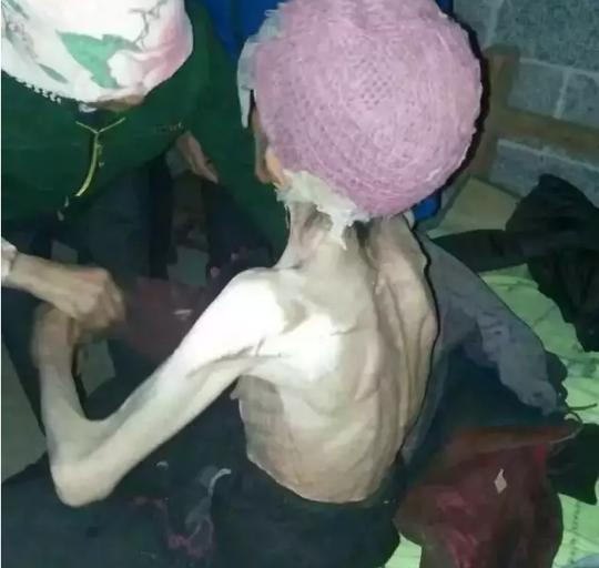 Thân hình gầy trơ xương của bà Yang khi được kiểm tra sức khỏe. Ảnh: Southern Morning Post