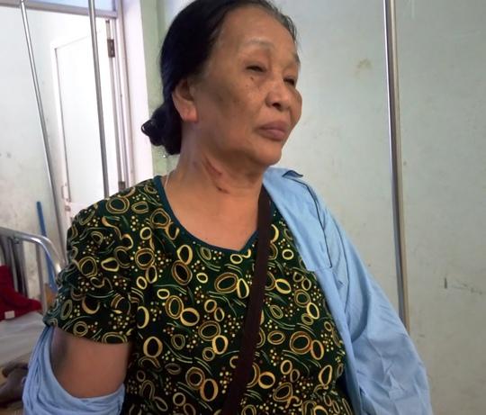 Bà Lan bị ông Việt bóp cổ dẫn đến chấn thương hiện đang điều trị tại bệnh viện