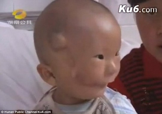 Sau khi được phẫu thuật, tình trạng của bé Khang Khang đã khá hơn. Ảnh: Hunan Public Channel