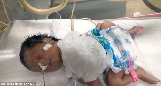 Chứng bệnh lạ khiến tim của bé Laraib nằm ngoài lồng ngực. Ảnh: Caters News Agency