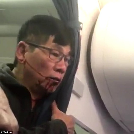 Ông David Dao bị kéo khỏi máy bay một cách thô bạo hôm 9-4. Ảnh: Twitter