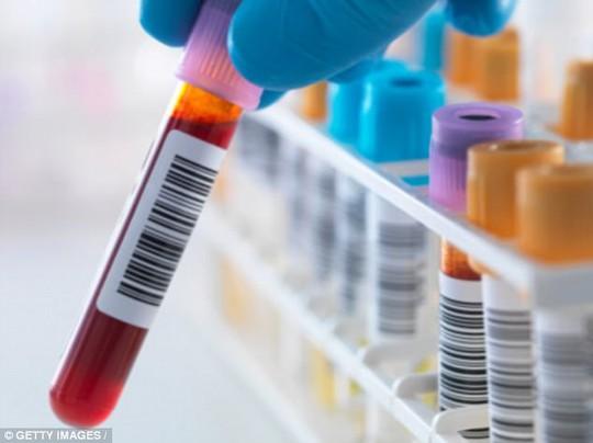 Cho đến nay, các phương pháp điều trị căn bệnh thế kỷ chỉ tập trung vào virus HIV trong tế bào T, một loại bạch cầu. Ảnh: Getty Images.