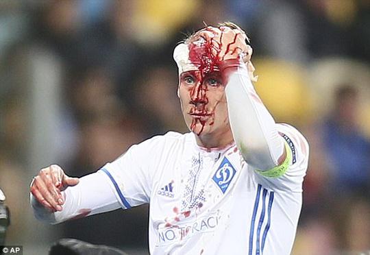 Không chiến nảy lửa, sao Dynamo Kiev vỡ đầu - Ảnh 3.