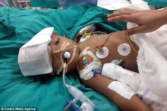 16 giờ phẫu thuật tách đôi 2 bé song sinh dính hộp sọ - Ảnh 2.
