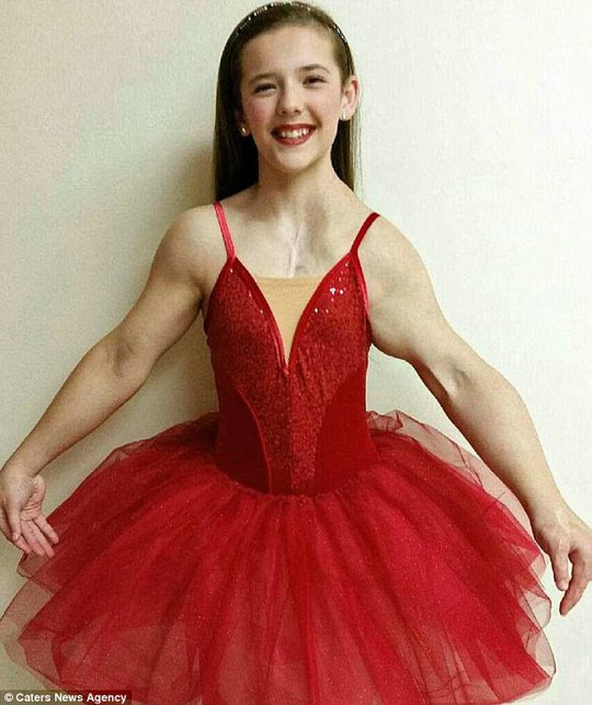 Nữ vũ công xinh đẹp mắc bệnh lạ cực hiếm - Ảnh 1.