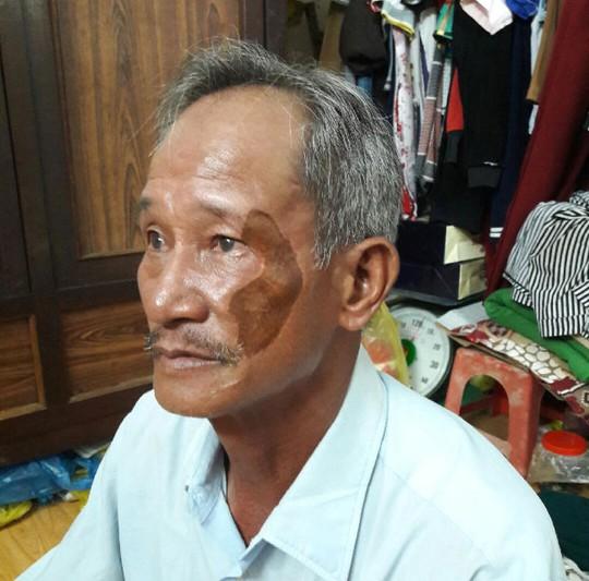 Ông Trần Châu Tuấn bị chém sau khi tố cáo mình bị tống tiền
