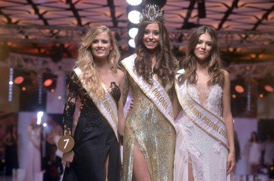 Cận cảnh nhan sắc Ba Lan tại Hoa hậu Hoàn vũ 2017 - Ảnh 1.