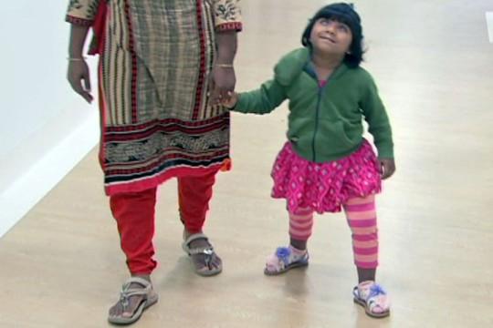Sau phẫu thuật, bé Choity đã có thể chạy nhảy bình thường. Ảnh: ABC News