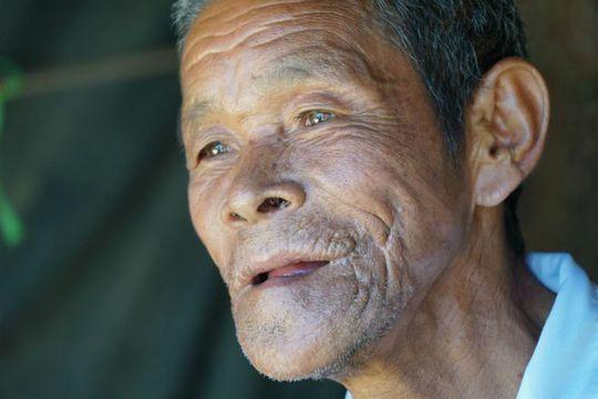 Cụ ông Campuchia sau ca phẫu thuật bộ nướu răng khổng lồ - Ảnh 3.