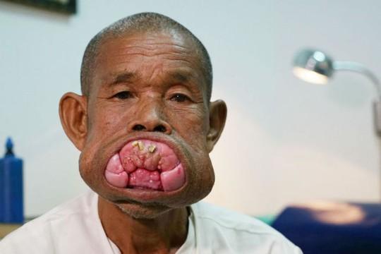 Cụ ông Campuchia sau ca phẫu thuật bộ nướu răng khổng lồ - Ảnh 1.