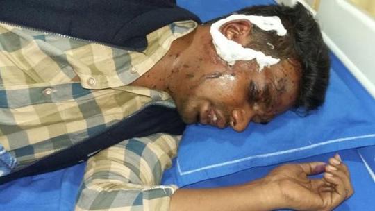 Ông Jayakumar Purushottam, 32 tuổi, là nạn nhân nam hy hữu bị nữ giới tạt axit vì tình. Ảnh: BBC