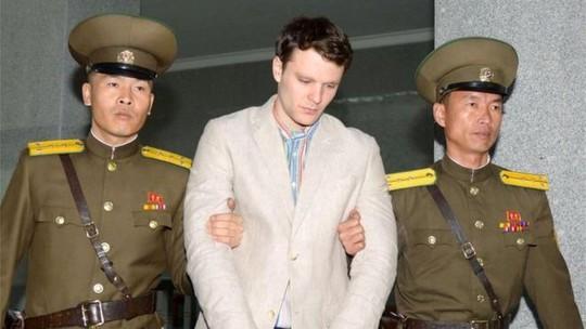 Bác sỹ Mỹ nổ não vì bệnh của sinh viên Mỹ về từ Triều Tiên - Ảnh 1.