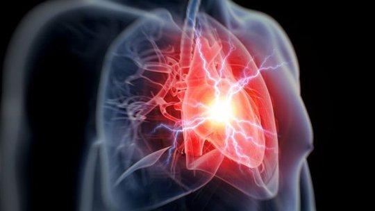 Thử máu, biết trước được cơn đau tim - Ảnh 1.