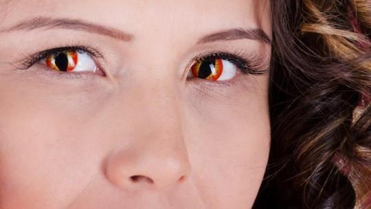 Halloween: bệnh nhân đau, mù mắt gia tăng - Ảnh 1.