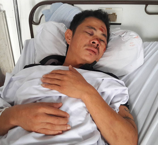 Tài xế bị đánh hội đồng gãy xương hàm, dập mũi trước quán karaoke - Ảnh 1.