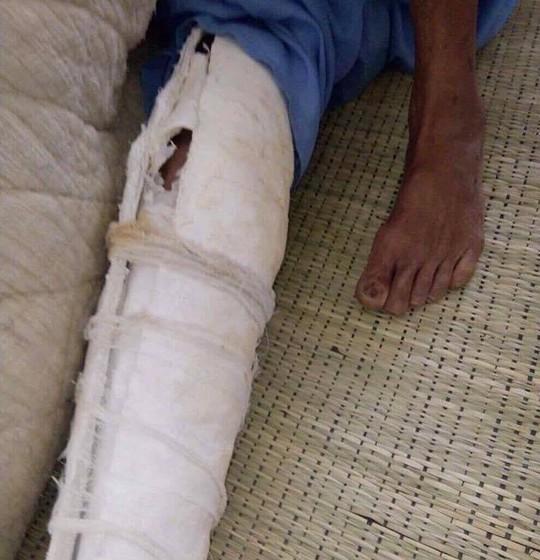Con trai đánh bố đẻ gãy xương sườn, mẻ xương bánh chè, xương ống chân - Ảnh 2.