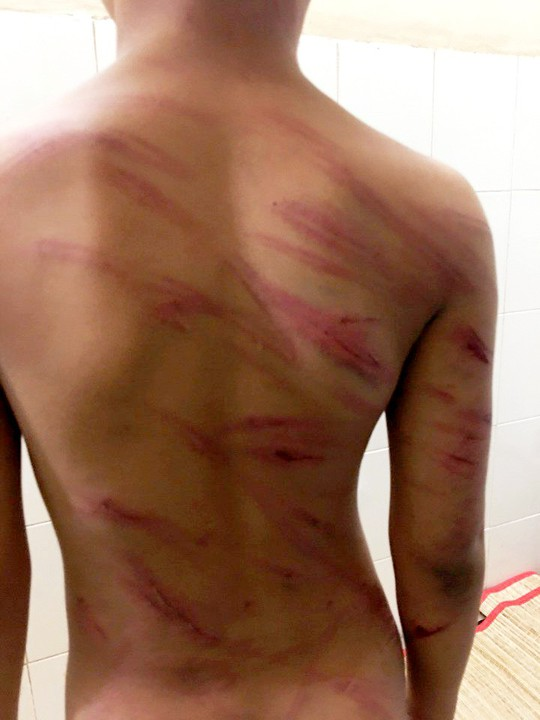 Bắt giam cha dượng bạo hành dã man con riêng của vợ - Ảnh 1.