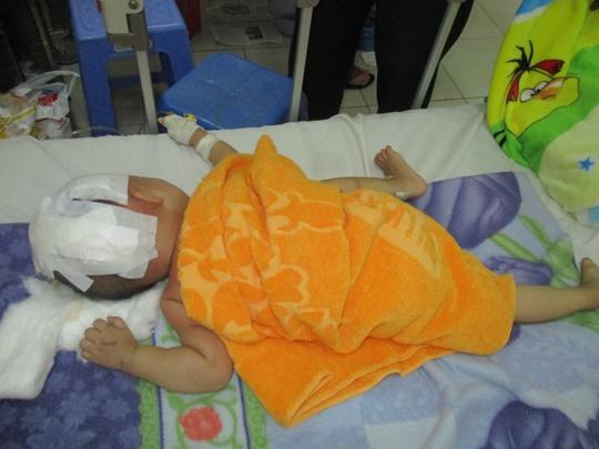 Bé Bảo bị chấn thương sọ não, hiện đang điều trị tại Bệnh viện Đa Khoa Trà Vinh