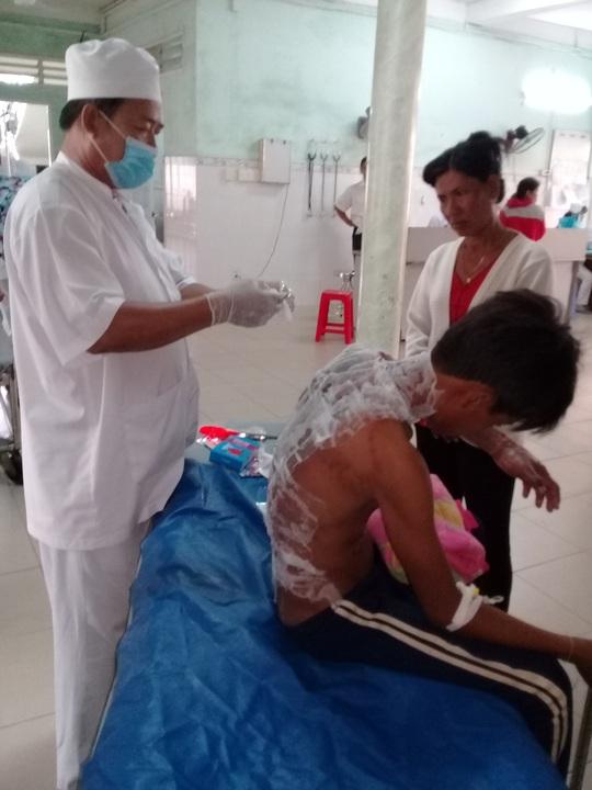 Em Th. đang điều trị vết bỏng rất nặng tại Bệnh viện Đa khoa Trà Vinh