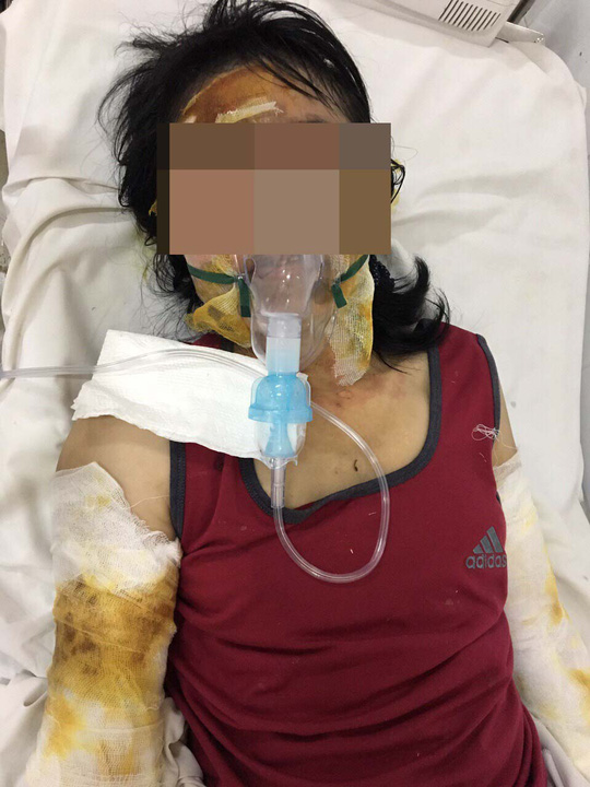 Cô giáo bị bỏng nặng ở Phú Quốc đang dần hồi phục - Ảnh 1.