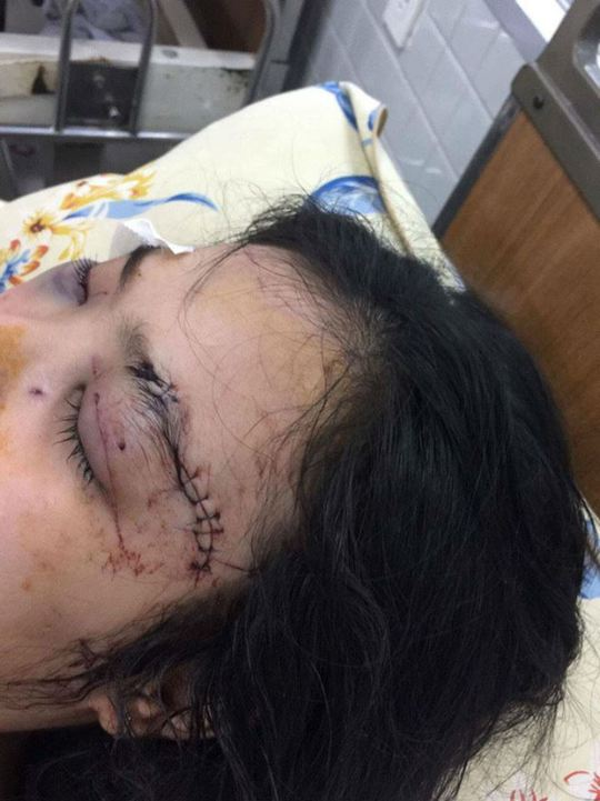 Em Trúc bị thương rất nặng ở vùng mắt, tai... và đặc biệt là tổn thương mắt