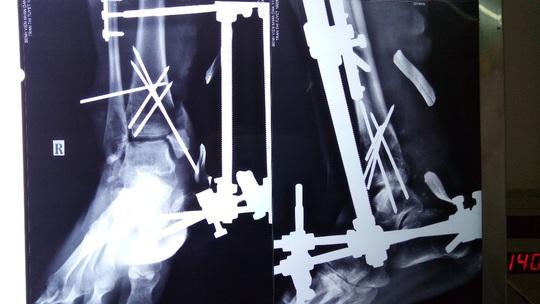 Bị xe nâng cán qua chân, người công nhân 3 lần lên bàn mổ - Ảnh 1.