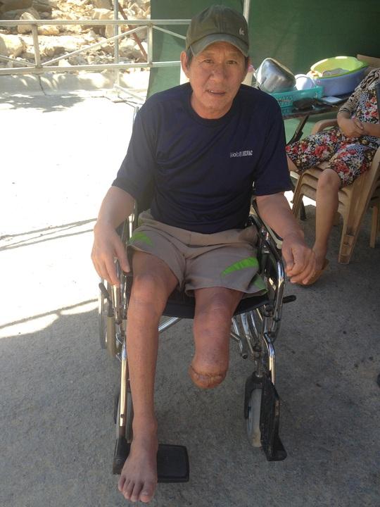 Ông Phạm Văn Hạnh, một hộ dân bị đá đè trong vụ bể mương phải cưa chân
