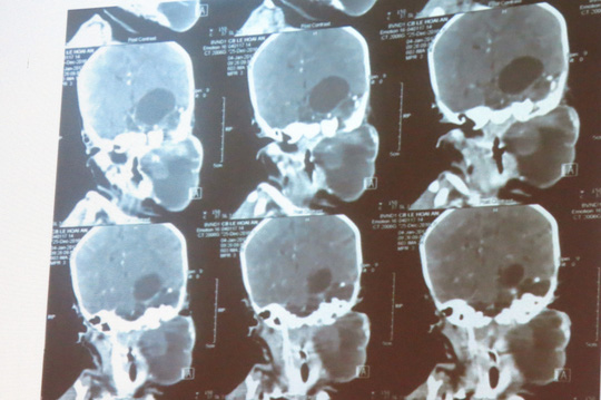 Hình ảnh khối bướu trên phim MRI