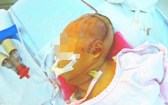 Bé gái sau phẫu thuật với 2 vết mổ ở vùng cổ và sọ