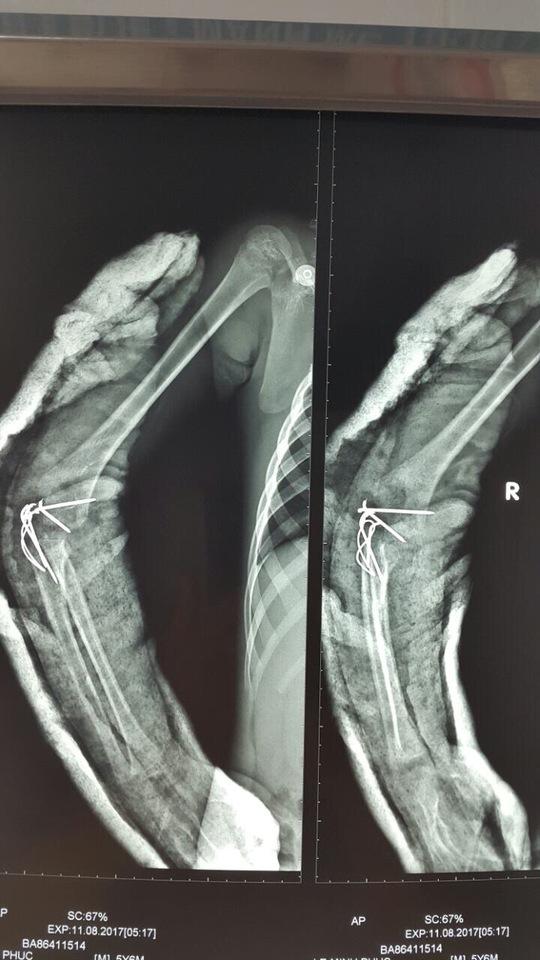 Ca ghép thất bại, bé trai 5 tuổi mất tay phải - Ảnh 2.