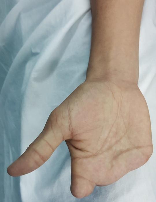Biến ngón chân thành ngón tay cho bàn tay mất 4 ngón - Ảnh 1.