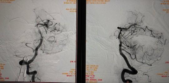 Lôi được cục máu đông gây đột quỵ dài nhất Việt Nam - Ảnh 2.