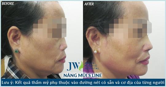 Mũi bệnh nhân trước và sau phẫu thuật.