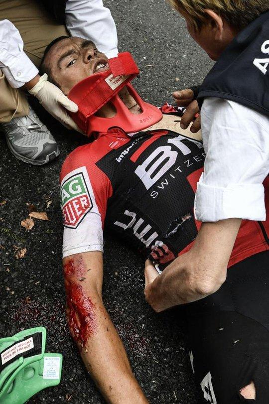 Cua rơ té gãy cổ ở Tour de France 2017 - Ảnh 1.