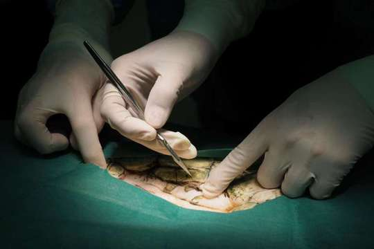 Các bác sĩ tiến hành phẫu thuật cho Omsin. Ảnh: Reuters