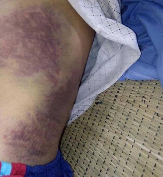 Con trai đánh bố đẻ gãy xương sườn, mẻ xương bánh chè, xương ống chân - Ảnh 3.