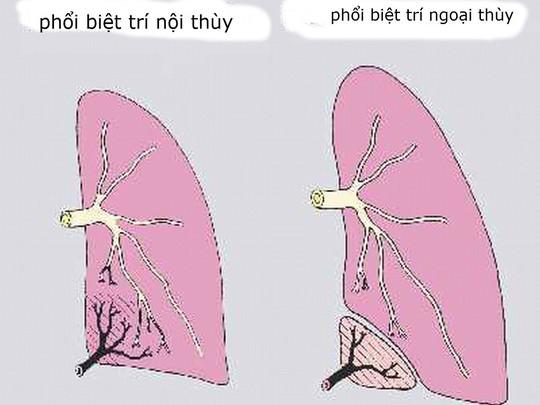 Nội soi thành công ca dị tật phổi hiếm gặp - Ảnh 1.
