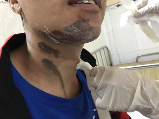 Sơ ý bị hóa chất tẩy rửa bồn cầu ăn vào cằm, cổ - Ảnh 1.